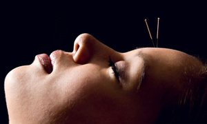 Alsip Integrated Medical Center: One or Three Acupuncture Sessions with Exam and Consultation at Alsip Integrated Medical Center (Up to 81% Off)