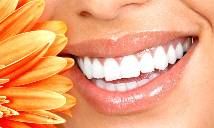 City Dental Centers - Multiple Locations: Zoom! Teeth Whitening and Cleaning with Optional Touchup and Take-Home Kit at City Dental Centers (Up to 87% Off)