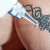 Laser Tattoo Removal, St. Helens