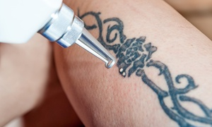 Laser Therapies: Three Sessions of Tattoo or Semi-Permanent Make-Up Removal at Laser Therapies (Up to 83% Off)