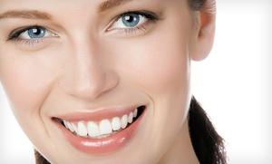 Limpieza bucal con pulido y fluorización por 12,90 € o con blanqueamiento led por 49,90 €