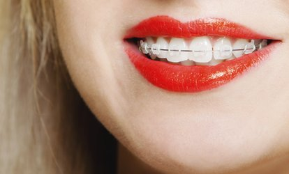 image for Cfast Braces for Top, Bottom or Both Arches for an Adult at Kalyani Dental Lounge (74% Off)