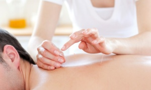 Nob Hill Community Acupuncture: $39 for Two Acupuncture Treatments with Initial Consultation at Nob Hill Community Acupuncture ($90 Value)