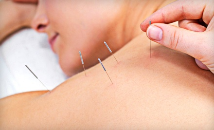 Initial Exam and 1 Acupuncture Treatment (a $45 value) - Circle of Wellness in Rockford