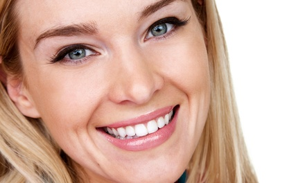 Dental-Exam Package, Zoom! Teeth Whitening, or Dental Implant at Silva Arejian, DDS (Up to 87% Off)