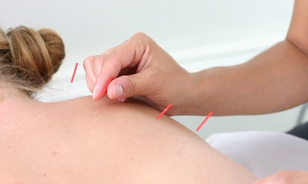 Denver The Acupuncture Lounge coupon and deal