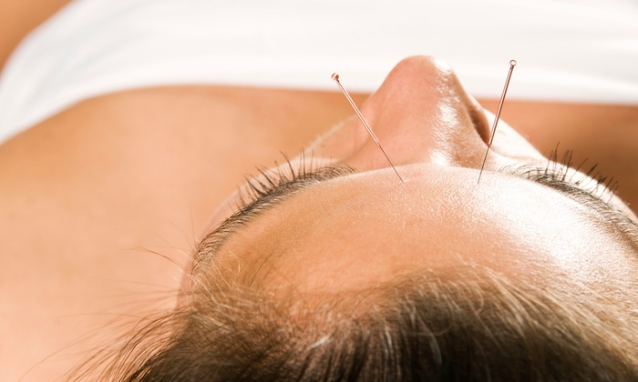 Flux Acupuncture Lounge - Westside: Two or Four Acupuncture Treatments with Consultation at Flux Acupuncture Lounge (Up to 71% Off)