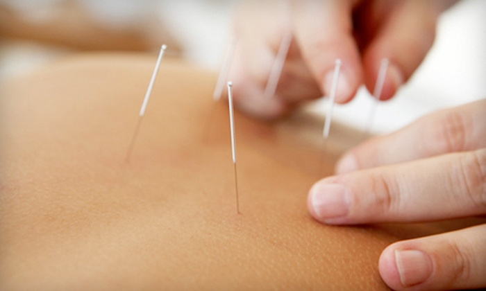 Uptown Acupuncture - Hillcrest: One, Three, or Five Acupuncture Treatments at Uptown Acupuncture (Up to 59% Off)