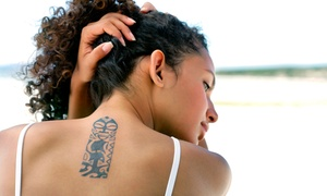 White Lake Family Health Services: Three or Six Tattoo-Removal Treatments at White Lake Family Health Services (Up to 68% Off)