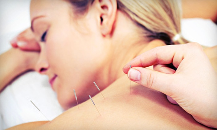 Myo Massage - Triangle State: $39 for a One-Hour Acupuncture Session with Cupping at Myo Massage ($120 Value)