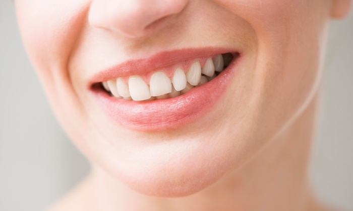 Maplebrook Dental - Maple Brook: $75 for a 60-Minute Dental Checkup with X-Rays and Cleaning from Maplebrook Dental (50% Off)