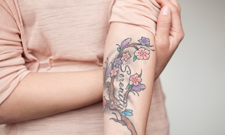 1 or 3 Laser Tattoo-Removal Treatments on 1 Area of Up to 6 Square Inches at Seriously Skin Cosmetic & Laser Medicine