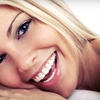 82% Off At-Home Teeth-Whitening Kit
