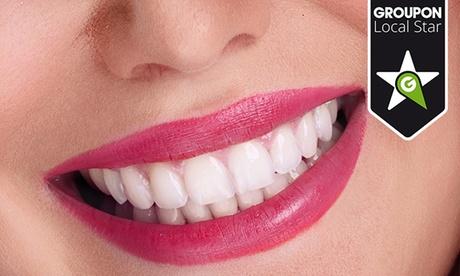 Limpieza dental con ultrasonidos por 12,90 € y con 1 o 2 sesiones de blanqueamiento LED desde 49,90 € Oferta en Groupon