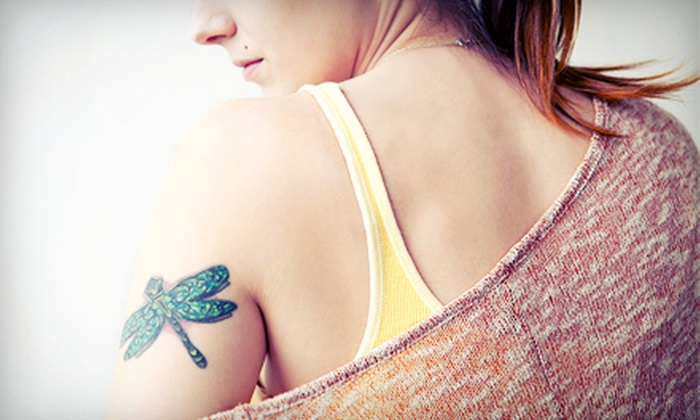 PacesLaserMD - Vinings: Laser Tattoo or Birthmark Removal for a 4-, 6-, or 8-Square-Inch Area at PacesLaserMD (Up to 71% Off)