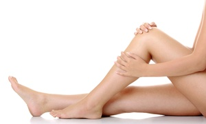 Designer Skin of the Palm Beaches: Two or Four Laser Spider-Vein-Removal Treatments for Legs at Designer Skin of the Palm Beaches (Up to 89% Off)