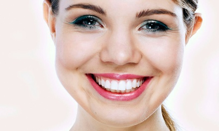 Dental Exam, Teeth Whitening, or Both at Downtown Dental Studio (Up to 89% Off)