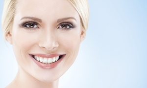 Tuckahoe Family Dentistry: $75 for $150 Worth of Bleaching Gel — Tuckahoe Family Dentistry