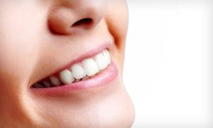Mbt 2: Limpieza bucal con ultrasonidos, fluorización y diagnóstico por 12,90 € y con 1, 2 o 4 empastes desde 19,90 €