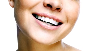 Dr. Kayvon Javid at Doctor Smile: $45.86 for a Dental Exam with X-rays and Cleaning from Dr. Kayvon Javid at Doctor Smile ($344 Value)