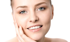 Skin Fitness: One or Two Ultrasonic Microdermabrasion Treatments at Skin Fitness (Up to 66% Off)
