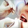 Up to 70% Off Wisdom-Tooth Extraction