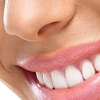 Up to 79% Off Dental-Service Package