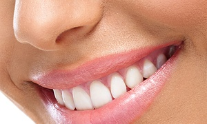 $31 For Dental Exam With X-rays, Cleaning, And Cosmetic Consultation At Sheridan Dental Care ($305 Value)