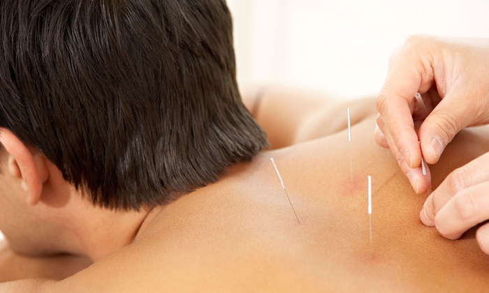 New Life Acupuncture & Herbs - New Life Acupuncture and Herbs: One or Three Acupuncture Treatments at New Life Acupuncture & Herbs (51% Off)