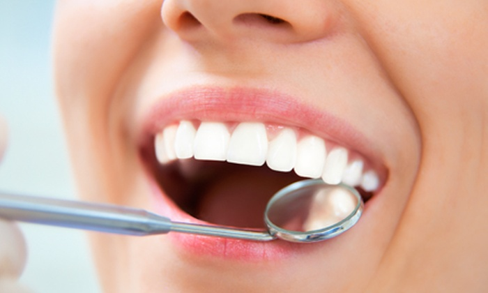 Insmile - INSMILE (REGGIO EMILIA): Visita odontoiatrica con sbiancamento LED a 54 € invece di 220