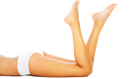 Two or Four Laser Spider-Vein Removal Treatments at ExSalonce Laser & Esthetics (Up to 57% Off)