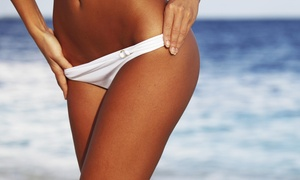 San Antonio Nutrition & Weight Loss: A Cellulite Reduction Treatment at San Antonio Nutrition & Weight Loss (55% Off)