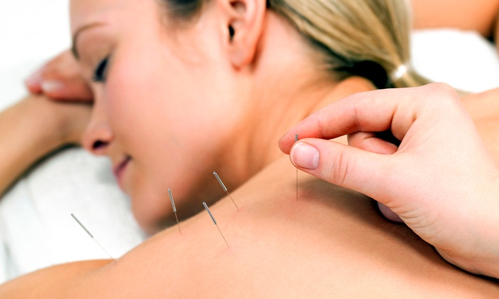 Carlsbad Acupuncture - Carlsbad Acupuncture: 1, 3, or 5 Acupuncture Treatments with Consult and Qi-Gong Techniques at Carlsbad Acupuncture (Up to 69% Off)