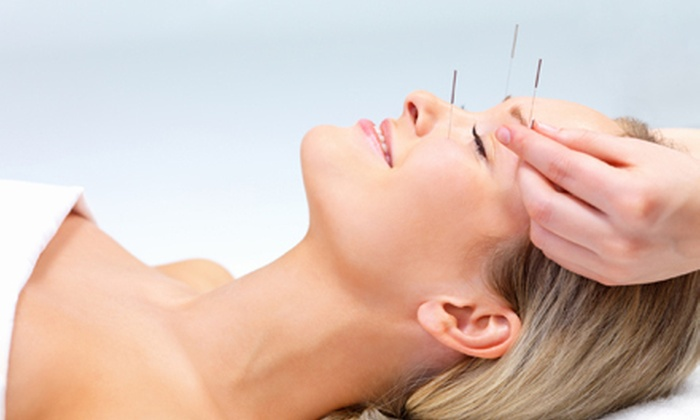 Brown Chiropractic & Acupuncture, PC - Optimist Park NE: One, Two, or Three Acupuncture Treatments with a Consultation at Brown Chiropractic & Acupuncture, PC (Up to 83% Off)