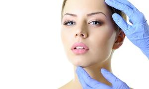 DR LUIGI CURSIO: Lifting viso con fili di sospensione su zone a scelta