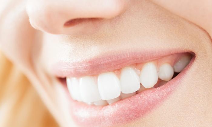 DR RICCARDO MORELLI - Morelli Riccardo: Uno o 2 impianti dentali in titanio da 499 € invece di 1600