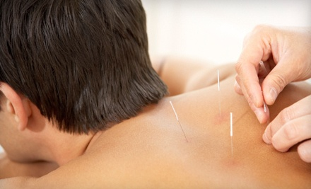 1 Acupuncture Session (a $76 value) - Chiro and Acupunture Clinic, Inc. in Grapevine