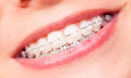 Tratamiento en ambas arcadas de ortodoncia metálica por 199 € o estética por 399 € en E-Dent Odontología Oferta en Groupon
