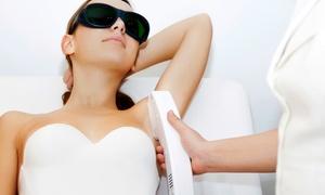 Glenoaks Laser Center - Dr. Nancy Kim: One or Three Laser Hair-Removal Treatments for Small Area at Glenoaks Laser Center (67% Off)