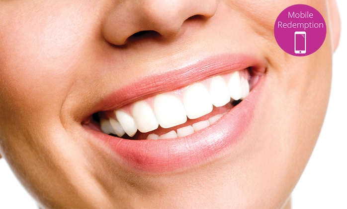 Dental Examination with Clean and Polish - One Person ($89) or Two People ($169) at Apex Dentist, Auckland