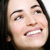 Up to Half Off Teeth Whitening for One or Two