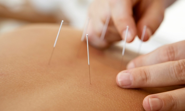 Jennie E. Hammett, L. Ac. - Central Business District: Two or Four Acupuncture Treatments with an Initial Consultation from Jennie E. Hammett, L. Ac. (Up to 70% Off)