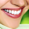 Up to 51% Off Teeth-Whitening Session