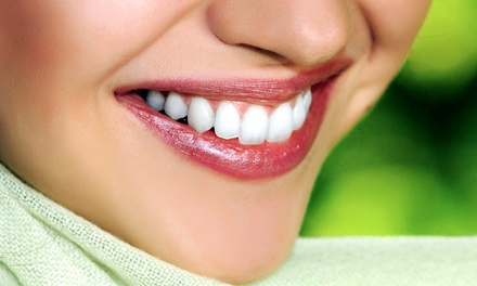 Teeth-Whitening Treatment with Optional Take-Home Whitening Pen at Laser Luxury (Up to 68% Off)