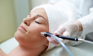 Skin Care by Taylor in Salon Loft: Microdermabrasion with Brightening Chemical Peel by Taylor in Salon Loft (Up to 79% Off). Two Options Available.