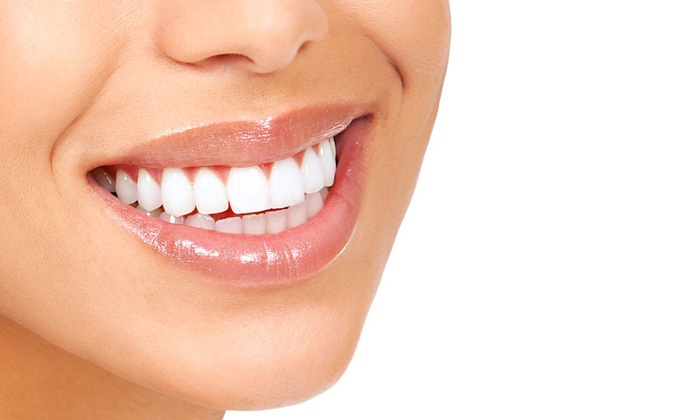 blanchiment dentaire charleroi