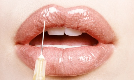 0.55ml or 1ml Lip Enhancement & Dermal Fillers at ReShapeU Beauty and Aesthetics (Up to 51% Off)