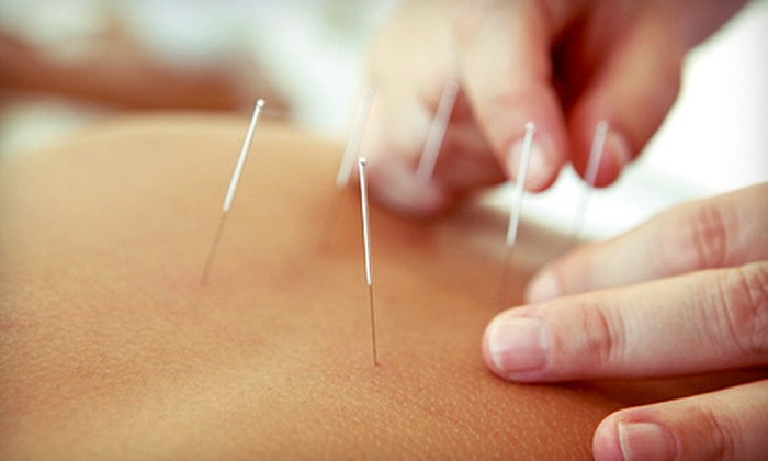 Acupuncture Integration - East Beach: $39 for Acupuncture with Consultation and Bodywork at Acupuncture Integration ($120 Value)