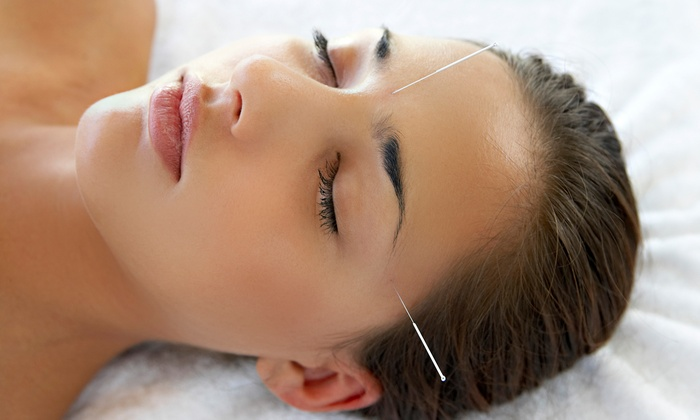 Grubby Halo Community Acupuncture - Lincoln Park: One or Three Acupuncture Sessions at Grubby Halo Community Acupuncture (Up to 58% Off)
