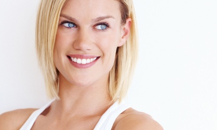 Teeth Whitening at QUICKbleach (Up to 72% Off). Two Options Available.